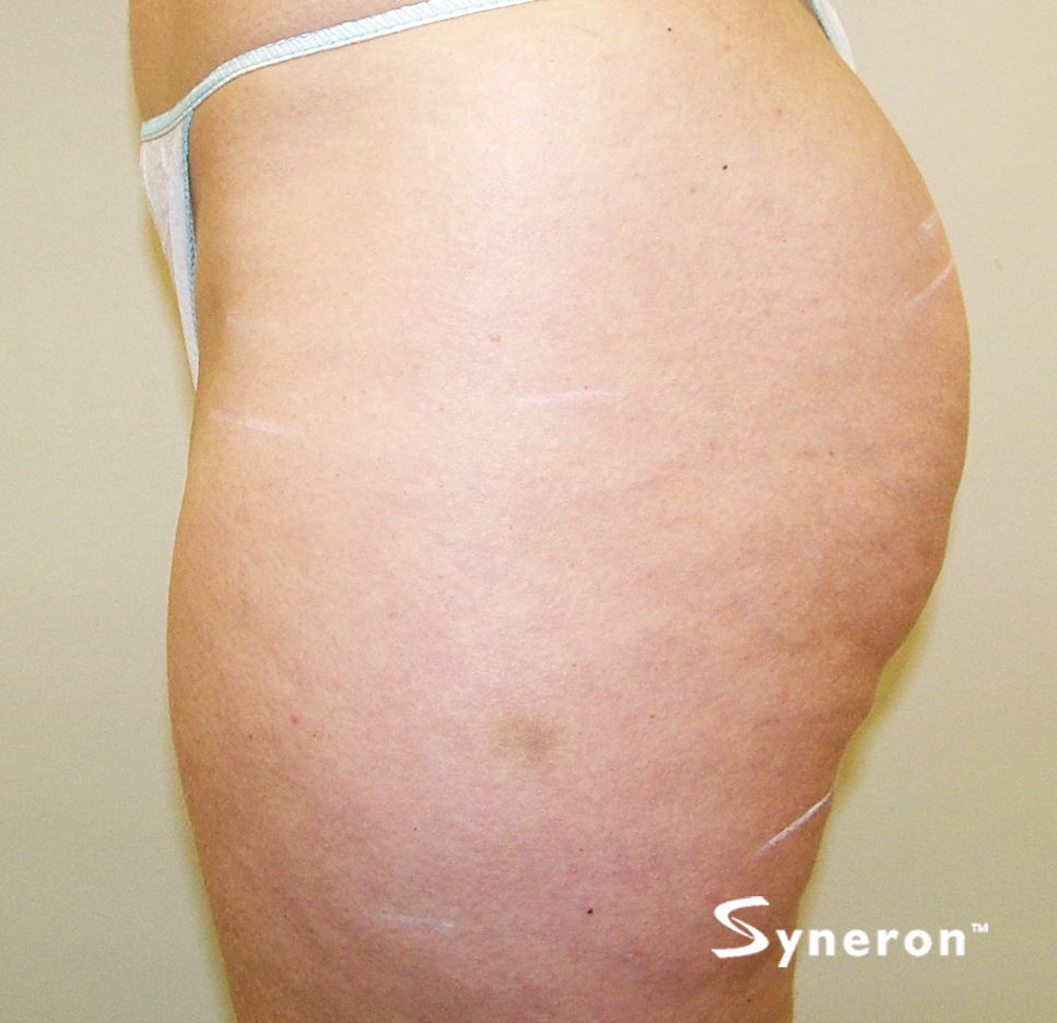 VelaShape_003_Dr.Boey_After-5-Treatments.jpg