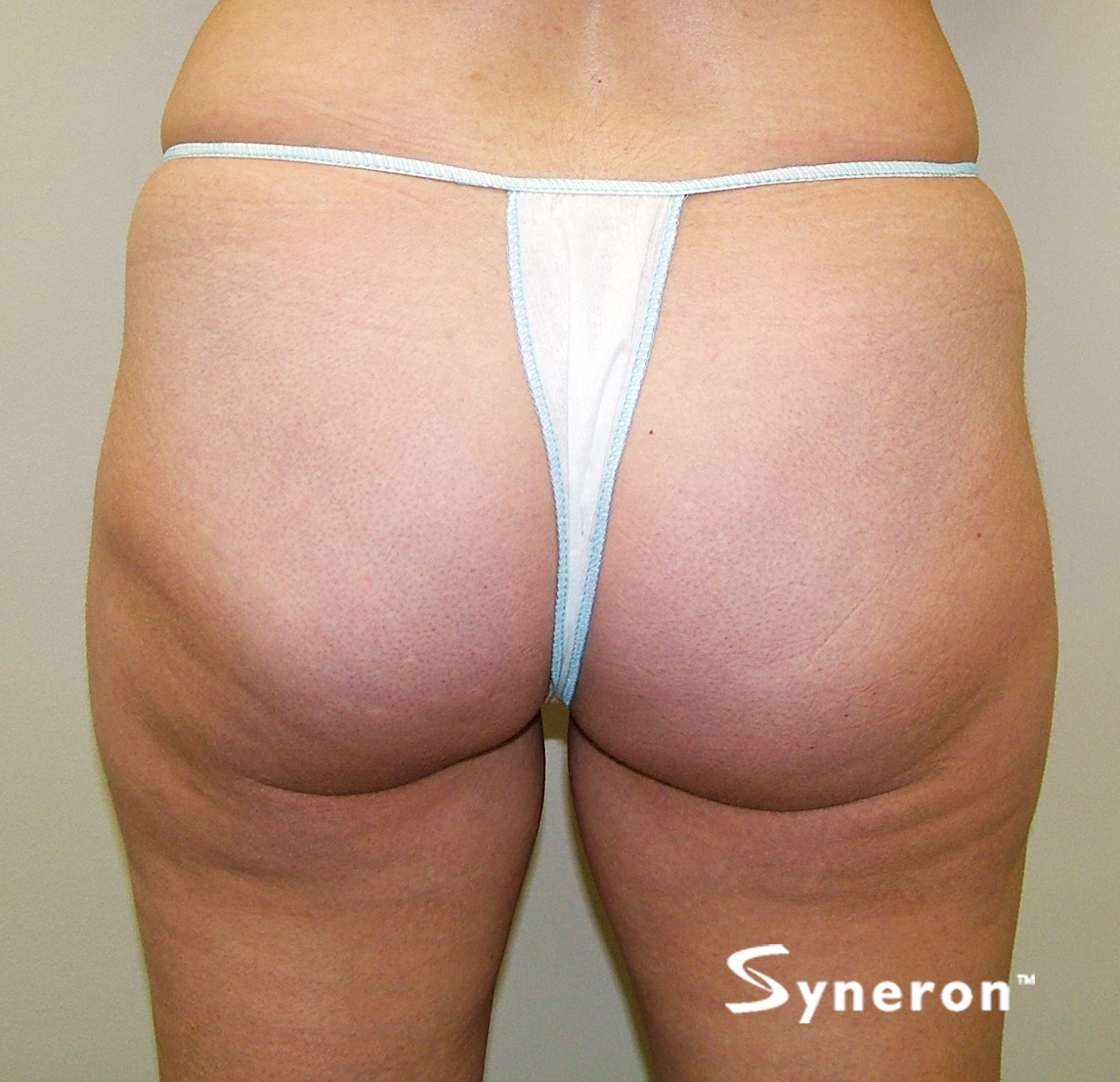 VelaShape_004_Dr.Boey_After-7-Treatments.jpg