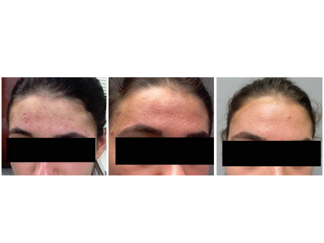 This patient underwent three treatments of  microneedling  . Note that the redness and texture of her skin has improved significantly.