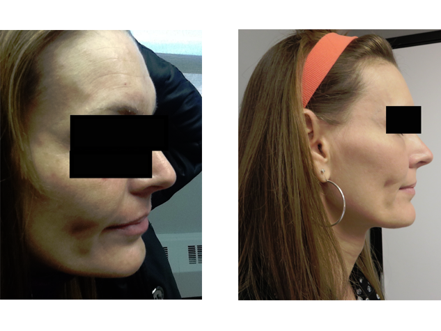 Forehead wrinkles reduced after  Xeomin