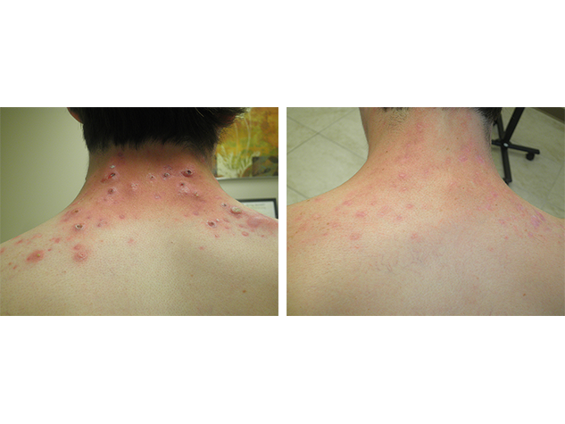Accutane - Back - After 6 months of treatment.