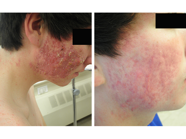 Accutane - Side - After 6 months of treatment.
