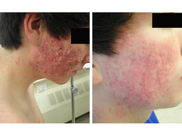 Before After Bergen Dermatology