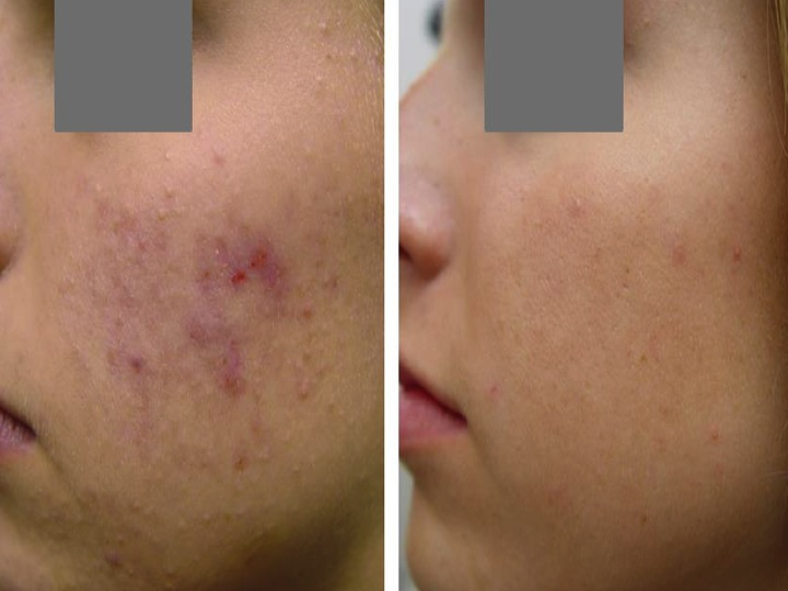 Active acne treatment with Fotona Laser. Courtesy of Robin Sult