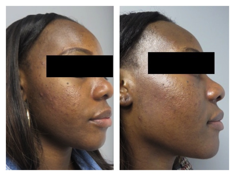After one month of using our Acne Survival Kit in addition to prescription-based oral and topical medications.