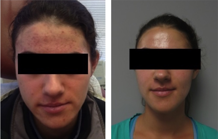 Two years after successful acne treatment and microneedling to improve the appearance of scarring.