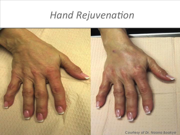 Hand Rejuevenation .jpeg