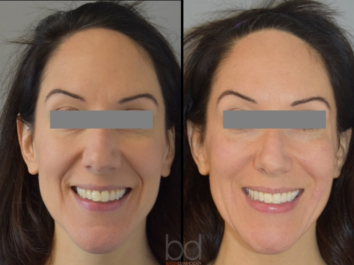 Filler placed in the mid-cheek and laugh lines for a more youthful appearance.