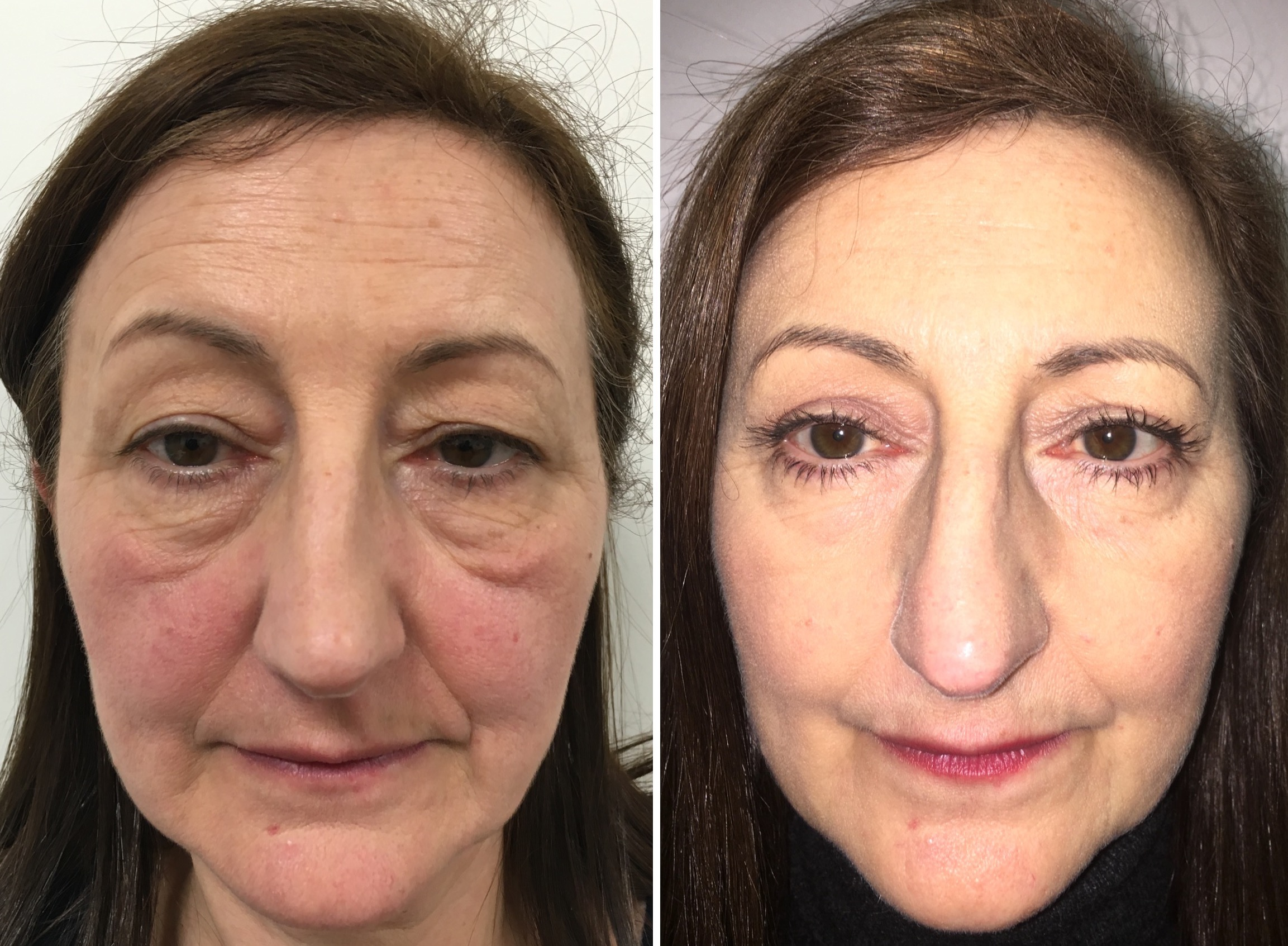 Before and 6 months after upper and lower eyelid blepharoplasty