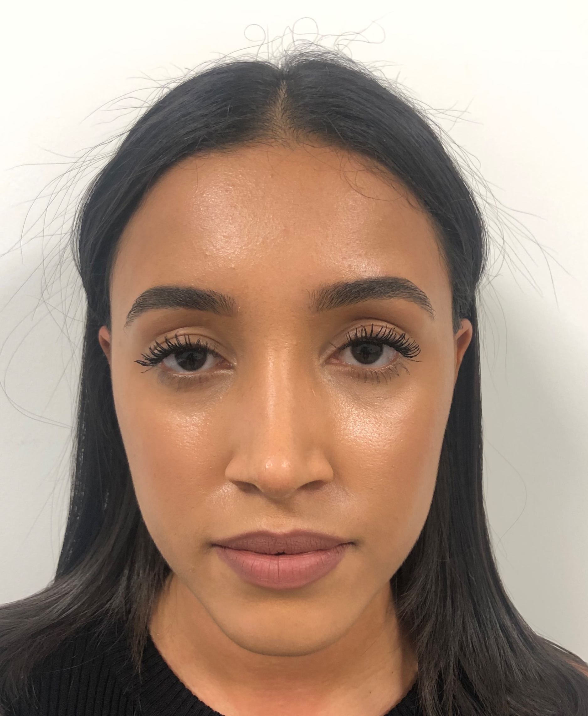 6 weeks post open rhinoplasty