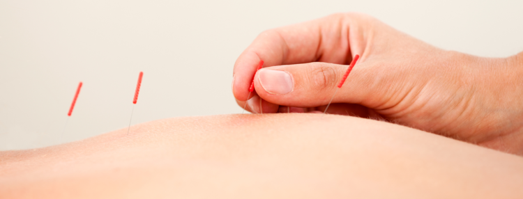 Acupuncture Johns Creek