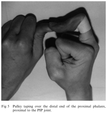Image 3 - Schweizer Circumferential Tape at Distal End of Phalanx.png