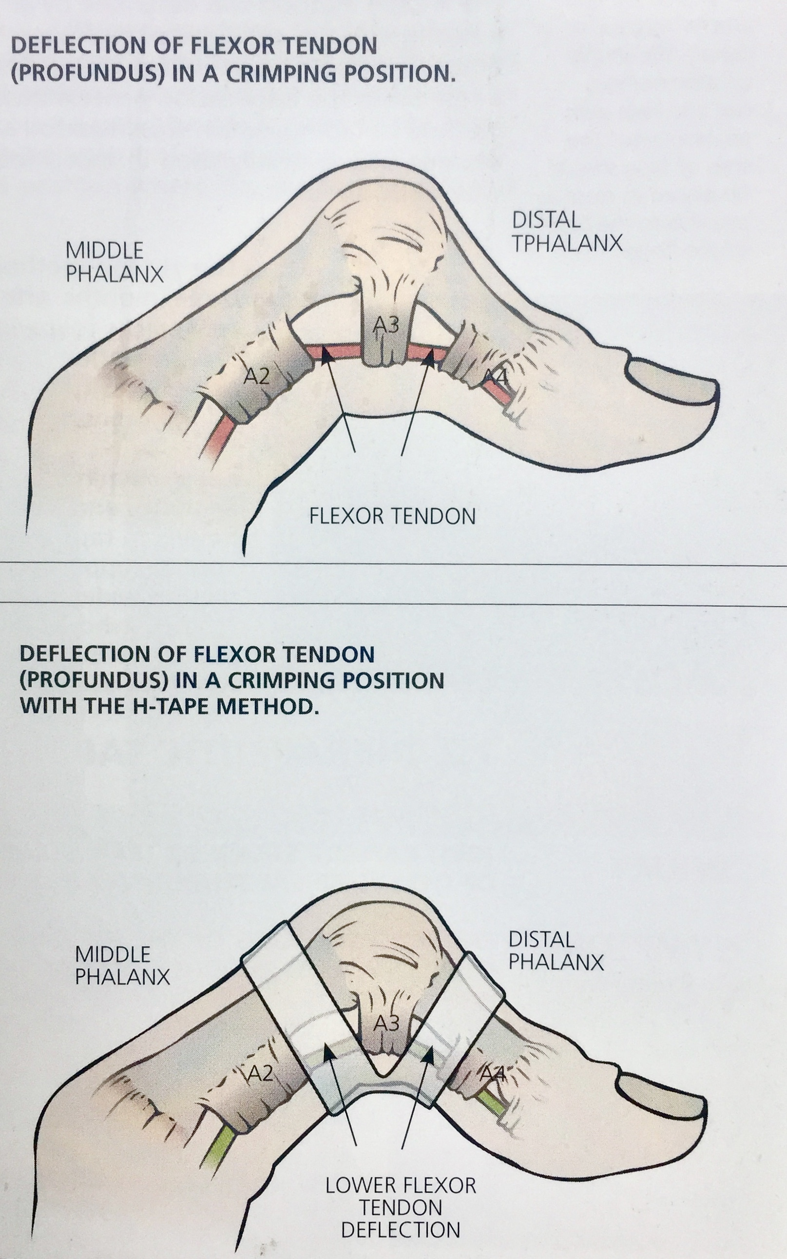 """Notice the location of the H-tape """"bridge"""". This allows optimal support of the A3 pulley and reduction of pulley-tendon angle."""