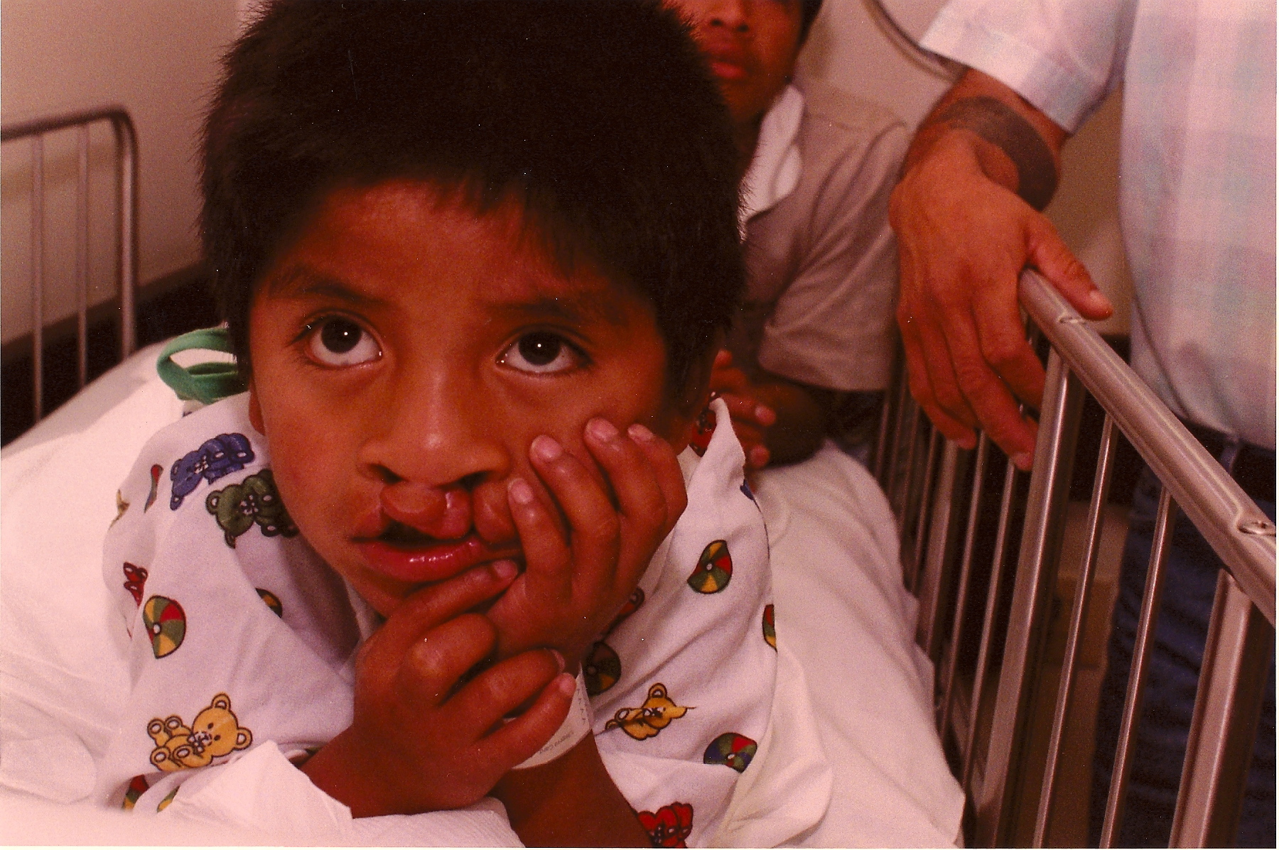 BEFORE: Young Nabor, born with a cleft palate.