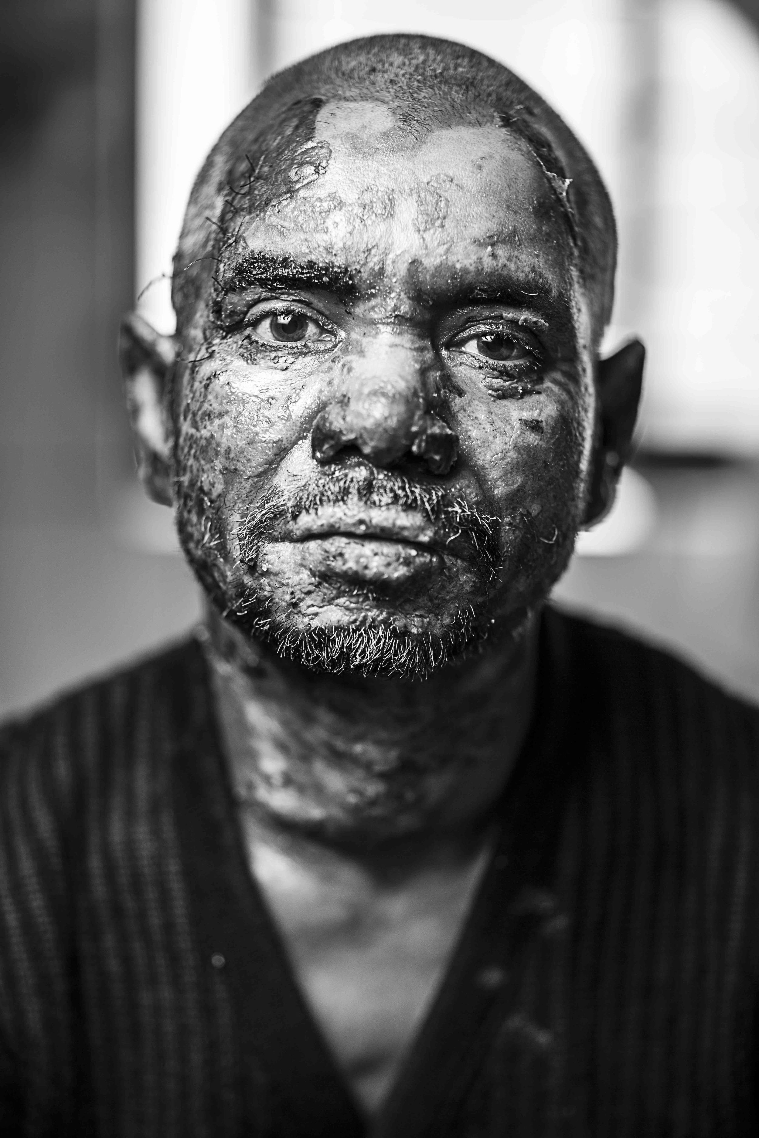 Lokman, 45 years old, a vegetable trader from Gazipur, received burns to 11% of his body, when miscreants threw a petrol bomb onto a truck he was travelling on he was admitted to Dhaka Medical College Hospital (DMCH) on the 2/1/2014.