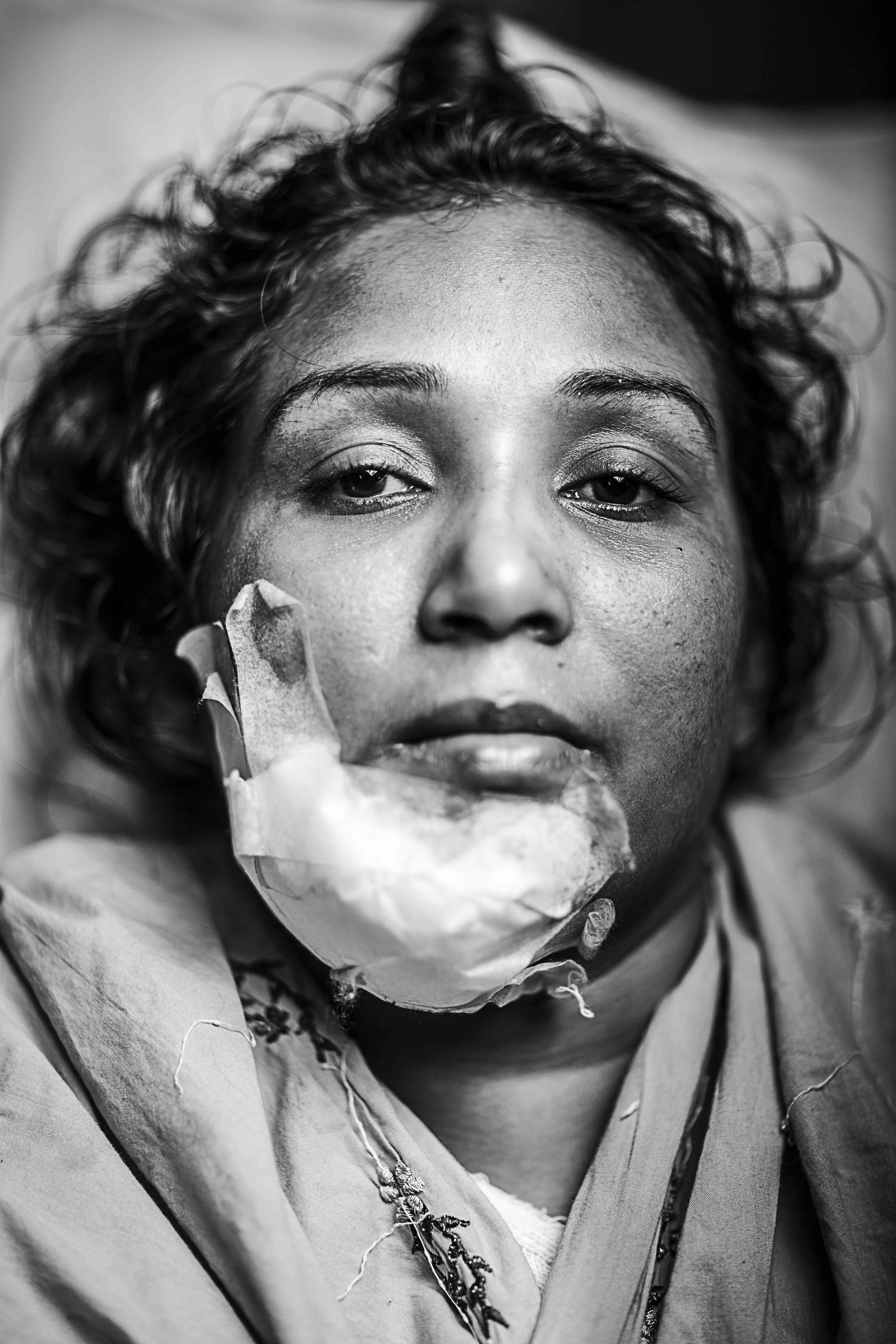 Kajal, 29 years old from Kamrangirchor, Dhaka was admitted to Dhaka Medical College Hospital on the and received burns to her right arm causing a soft tissue injury. A Molotov cocktail was pointed at her rickshaw and thrown while she was returning from a relatives house.