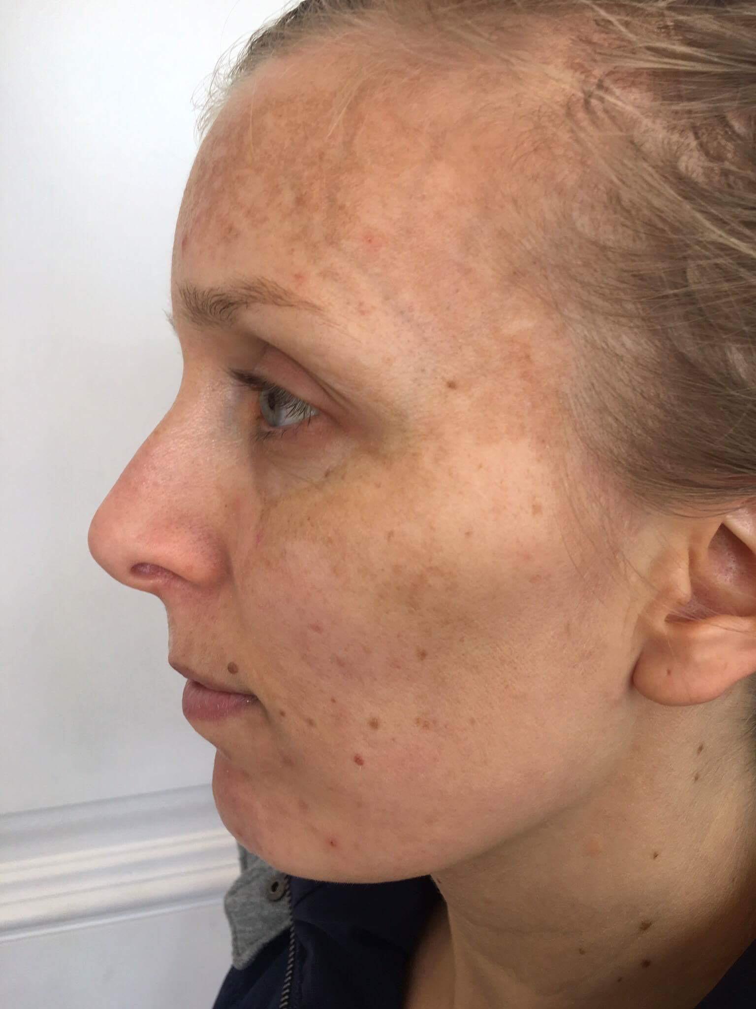 melasma cosmelan dermamelan depigmentation skin treatment