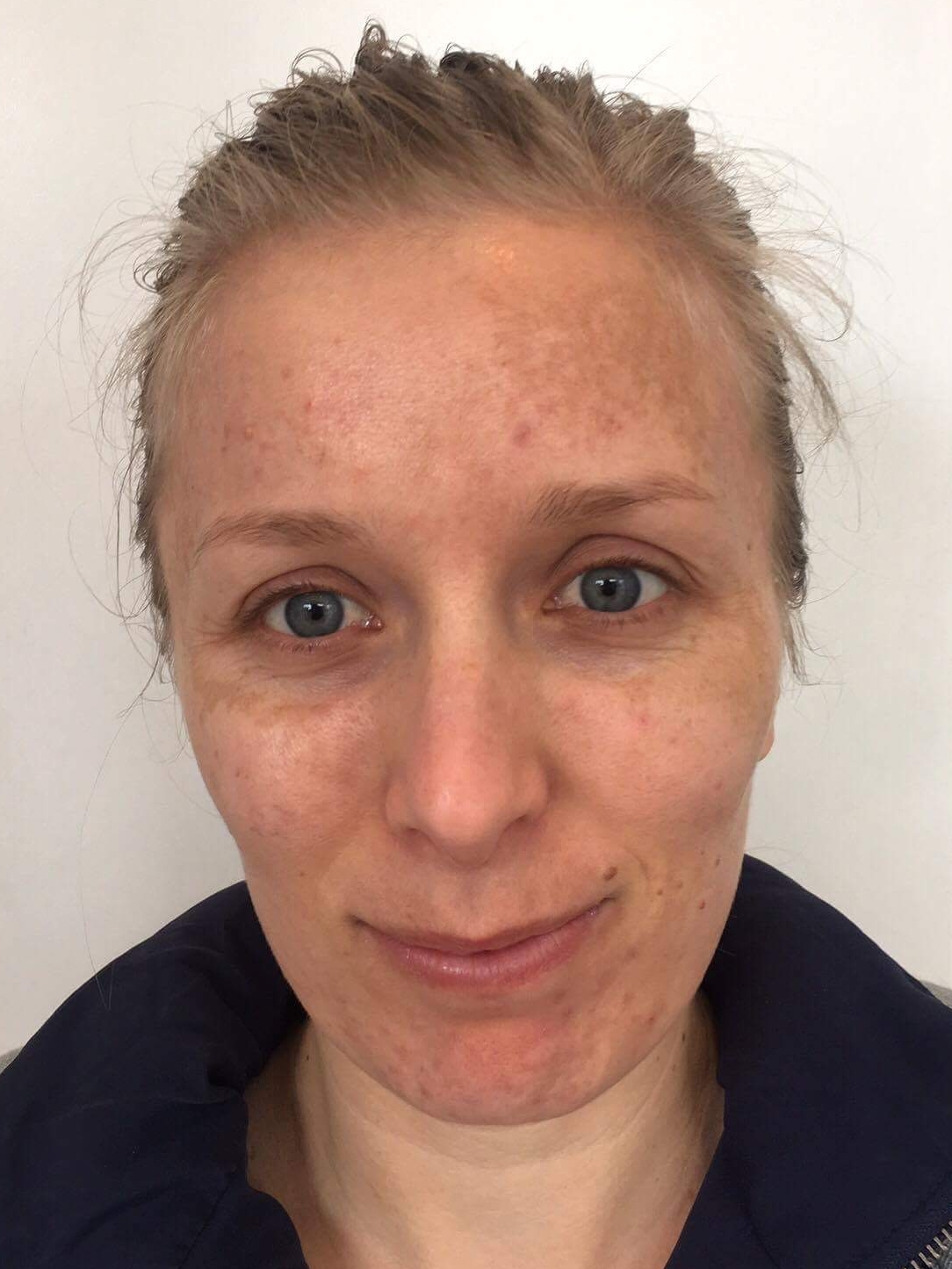 cosmelan dermamelan depigmentation pigmentation skin treatment melasma