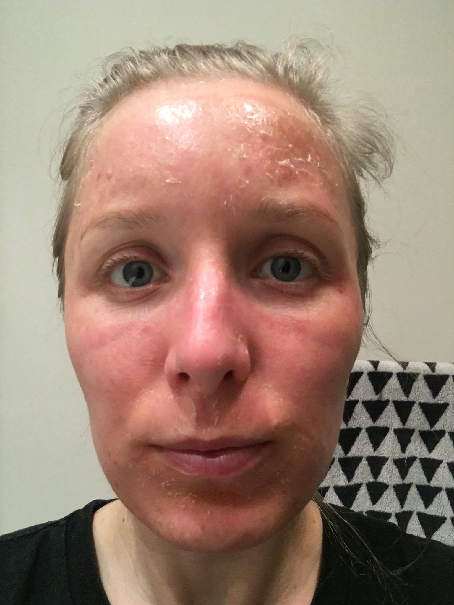cosmelan dermamelan depigmentation pigmentation skin treatment melasma melbourne skin clinic
