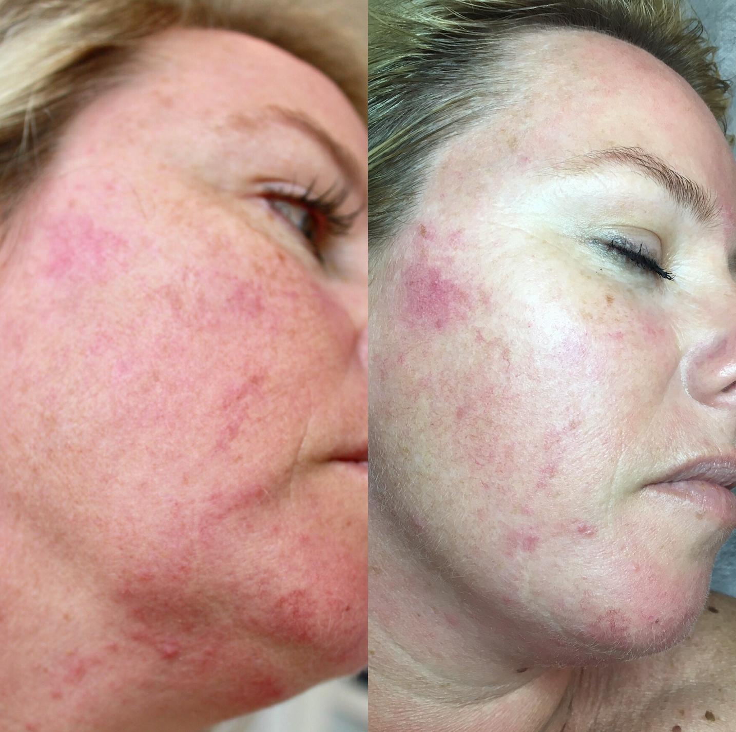 acne skin clinic melbourne