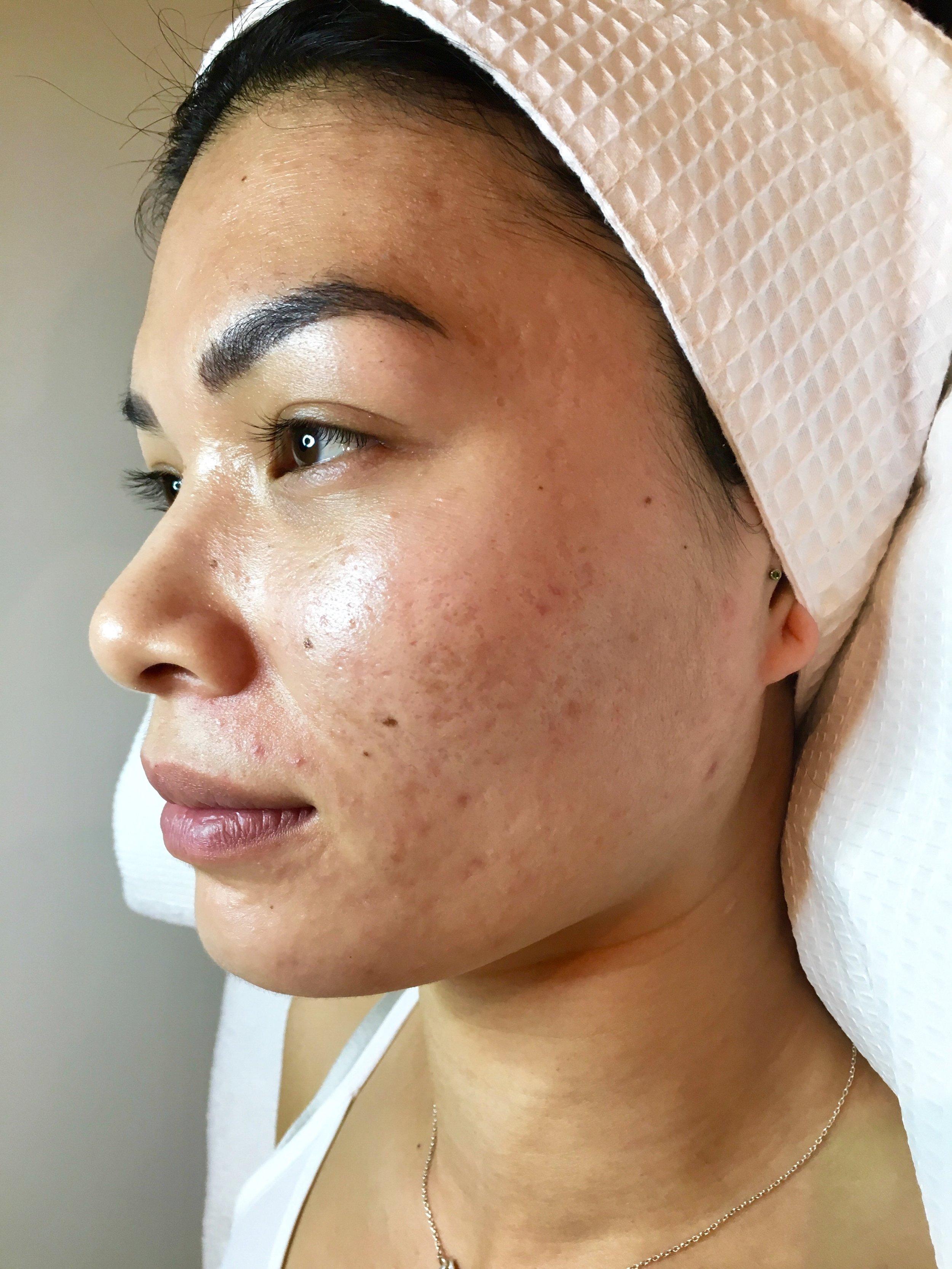 dermaviduals melbourne dmk enzyme therapy melbourne dmk enzyme treatment melbourne acne scaring. skin needling. skin clinic melbourne.