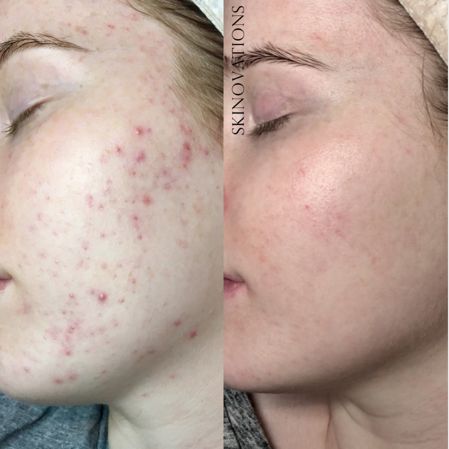 Acne Treatment and Scar Revision Melbourne