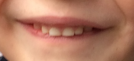 Oliver's top teeth at this time--note the lack of extra space.