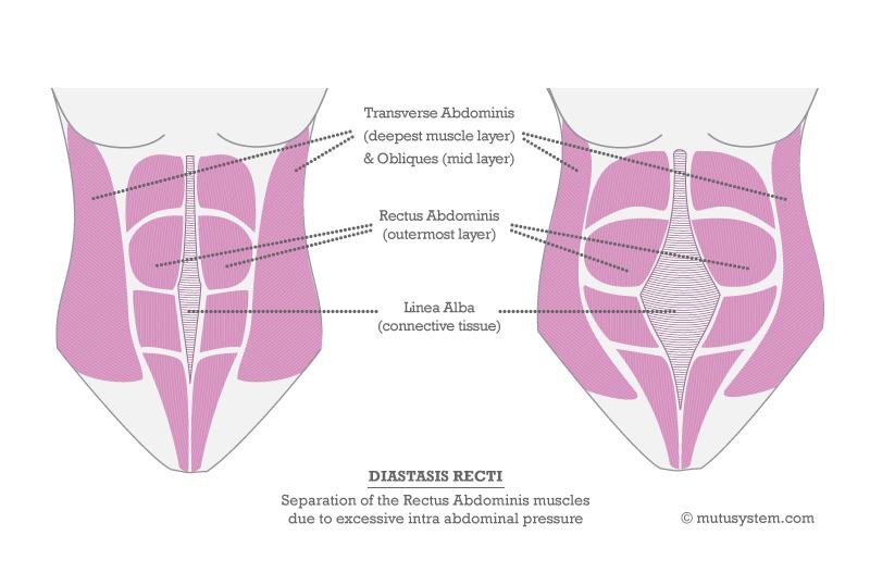 Diastasis-Recti-V3.jpg