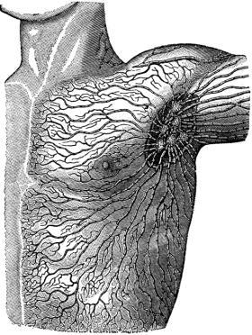 Superficial Lymph Circulation