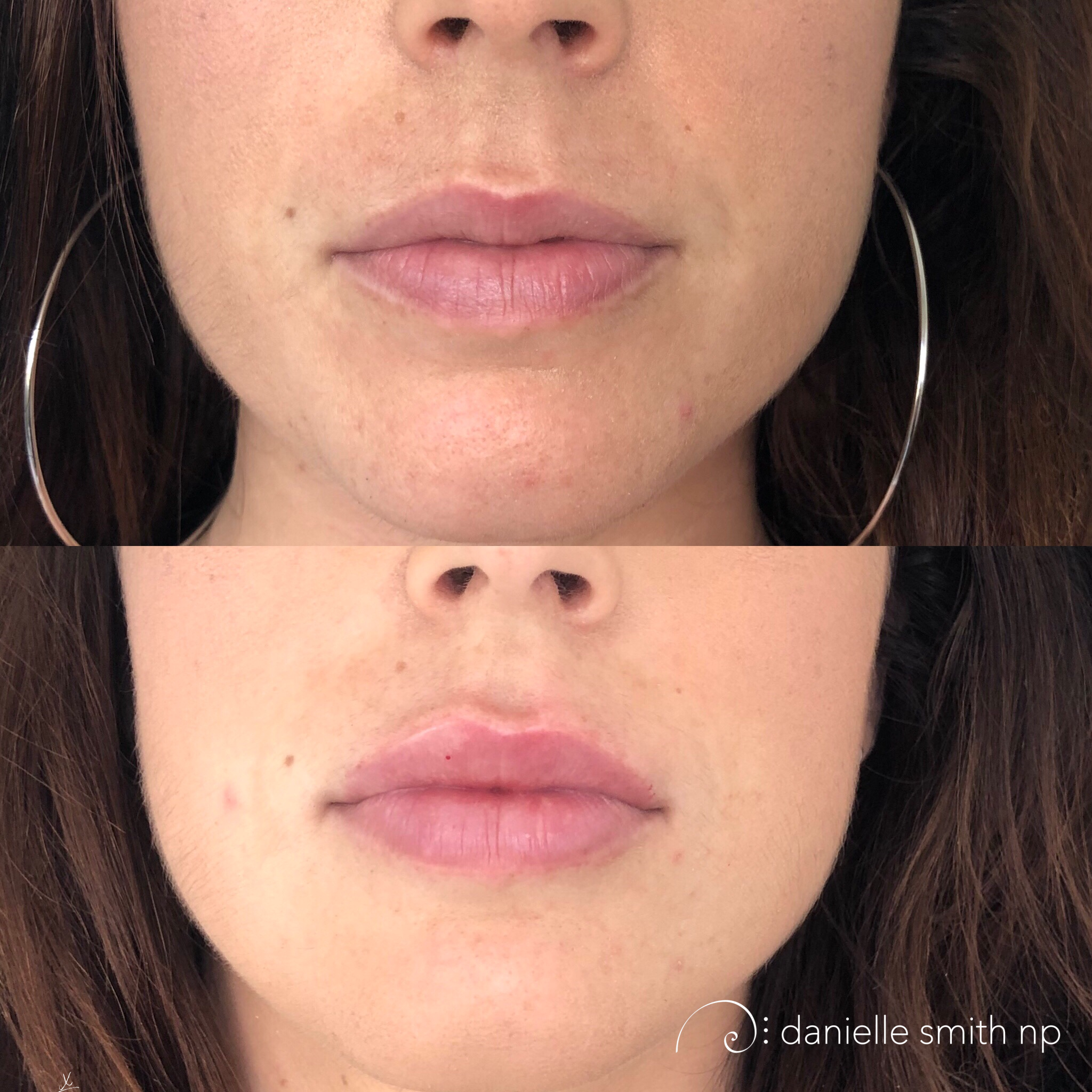 Here Danielle Smith NP used restylane for a subtle lip enhancement into the body of the lip with a combination of Volbella to the boarder but only on the lateral bottom vermillion boarder and the cupids bow. The trick here was attempting to balance out the baseline asymmetry of the GK points on the cupids bow. Once the swelling comes down they will settle out to nearly even. This may require a slight touch up to raise the left GK point.