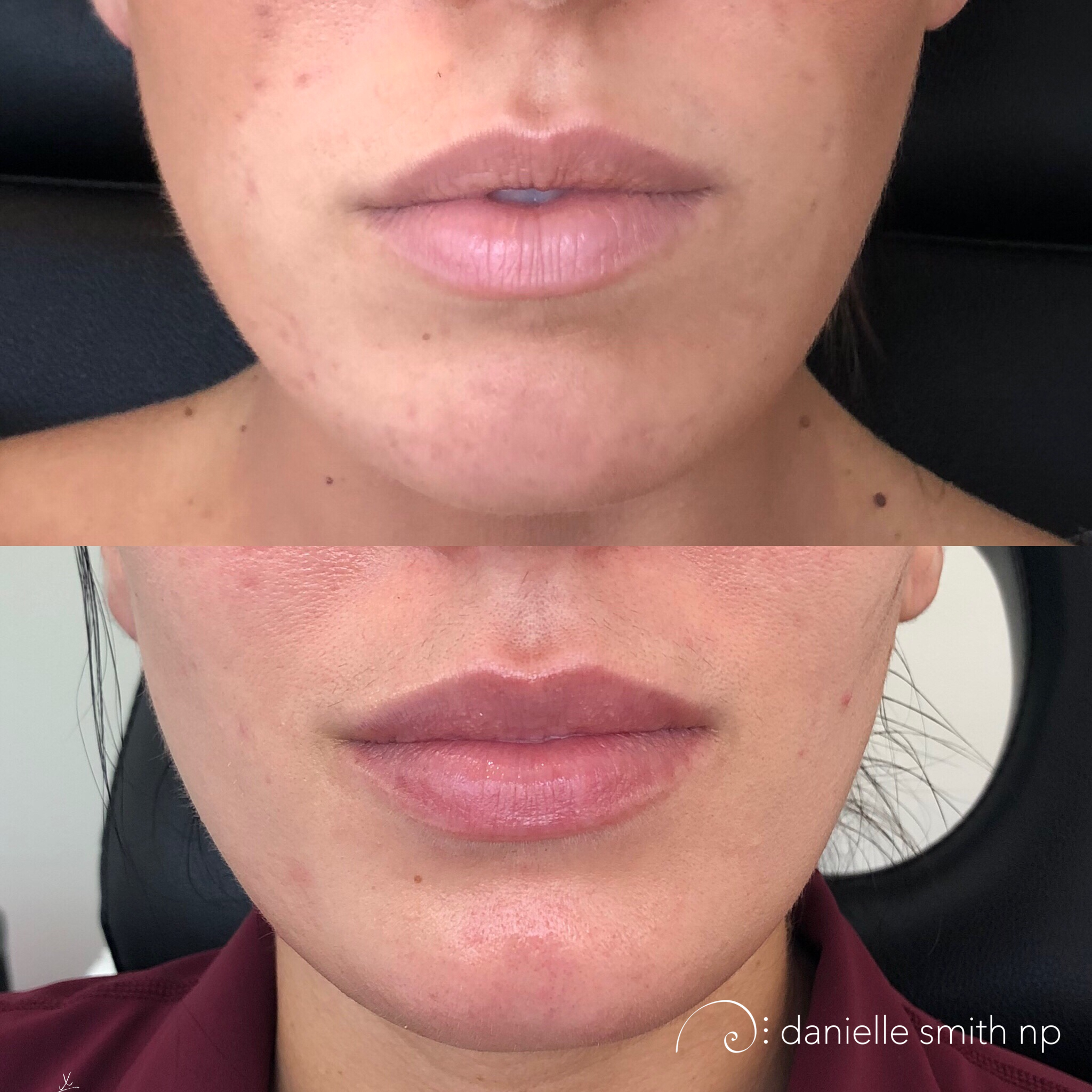 Danielle Smith NP injected this patient with Juvederm Ultra Plus in the body with 1.5 syringes of Juvederm and 1 syringes of Volbella to the boarder for contour and definition. This patient wanted to add more volume to her top lip while increasing the overall volume. Danielle injected the body of the top lip medially to fill our the bottom pillows then matched it on the lateral edges to flip the lip and expose more surface area. Then she matched the bottom lip by building out the oral commissures and lateral quadrants of the lip. Last was the definition to the boarder with Volbella.