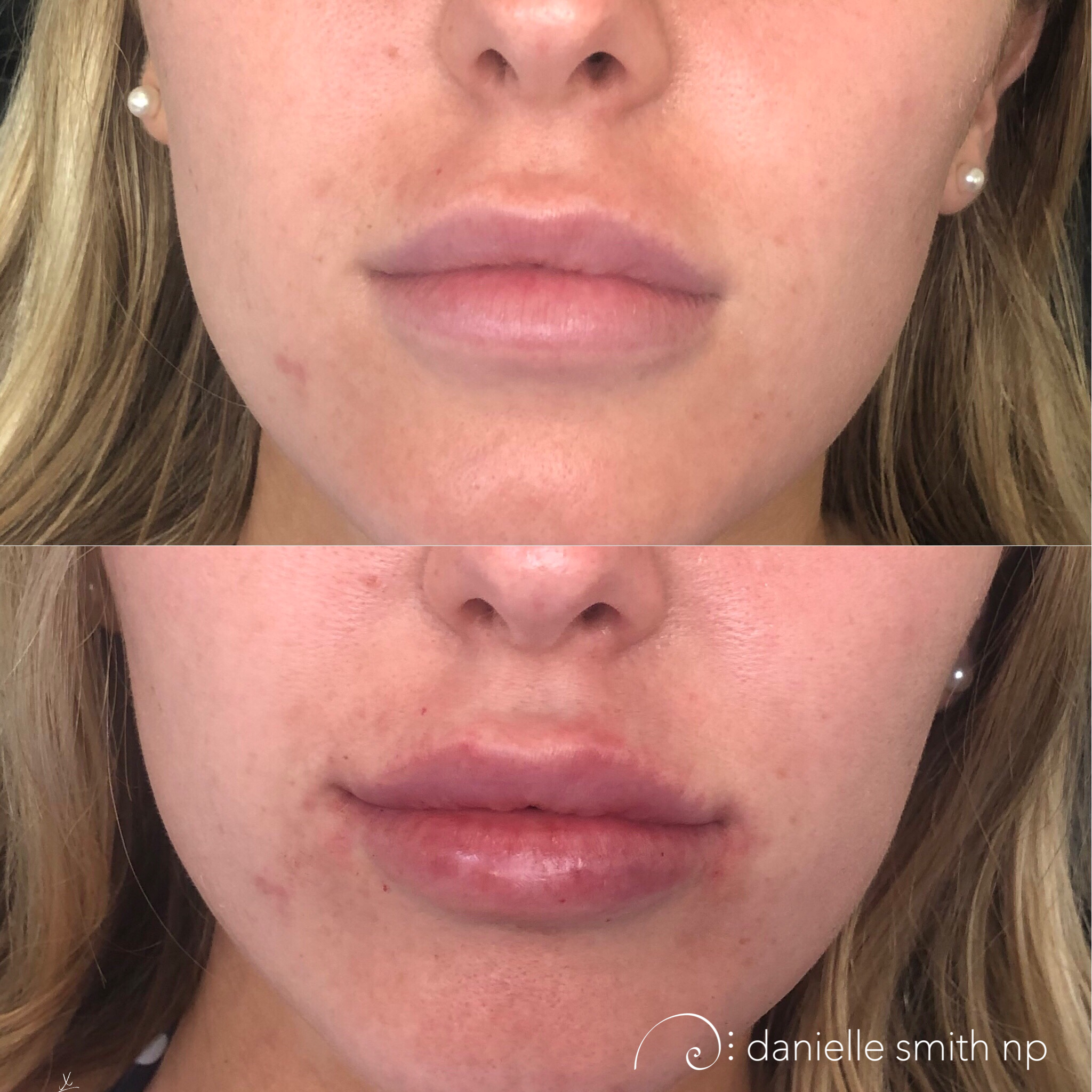 Danielle Smith NP injected 1.5 syringes of Juvederm to the body of the lips to add volume and 1 syringe of Volbella to the boarder for contour and definition. This patient wanted to achieve a 50:50 ratio between top and bottom lip which required adding a bit more to the top lip. As we add to the top lip it can round out the cupid bow and soften the definition of the lips. By injecting Volbella in the boarder, it allows us to redefine and shape the lips. We added back the cupids bow by highlighting the GK points and defined the bottom vermilion boarder with a crisp sharp edge.