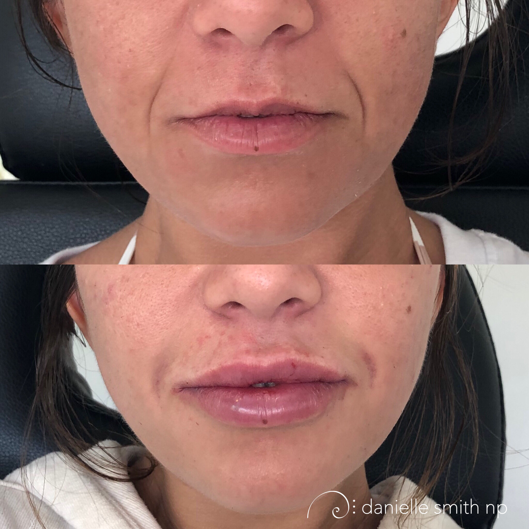 Danielle Smith NP injected 4 syringes of Juvederm. 2 syringes to the body of the lip, one to top and bottom in the first setting along with a 3rd syringe to the nasolabial folds (laugh lines). On the second session 2 months later she injected a 4th syringe into the body to the lips. This patient had a very small top lip and wanted to accomplish a 40:60 ratio. It takes time to flip the top lip by a significant amount. The best approach is to build the product up over time, adding layer by layer. The tissue can only hold so much product before it starts to shift it, creating bumps or projecting to much in the wrong part of the lip. Danielle recommends waiting 2 months in between building phases.