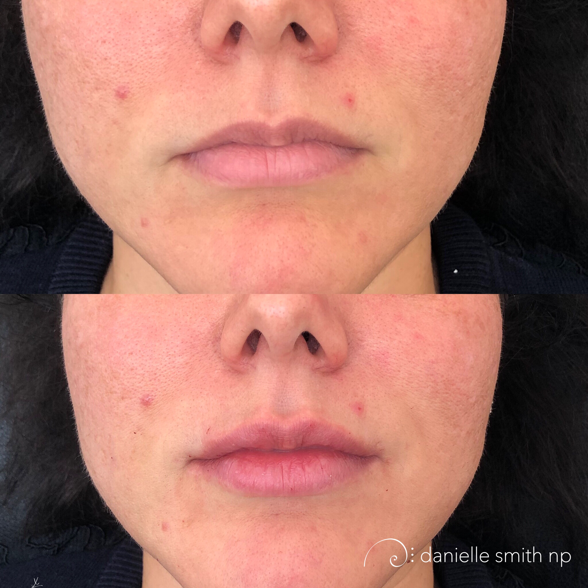 Danielle Smith NP injected 1 syringe of Juvederm to create fuller and more balanced lips. The patient wanted to add volume to her top lip, but we needed to balance out the bottom lip laterally to support the fuller top lip. If you don't balance out the bottom as well, you can loose the profile ratio, which causes the top lip to protrude over the bottom from a side angle.