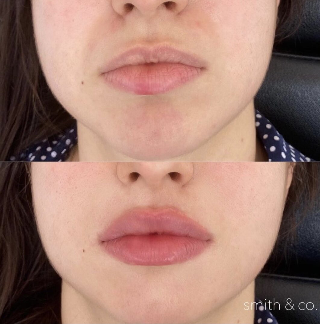 Kissing bruised ✨ lip to rid of get from a how Make A