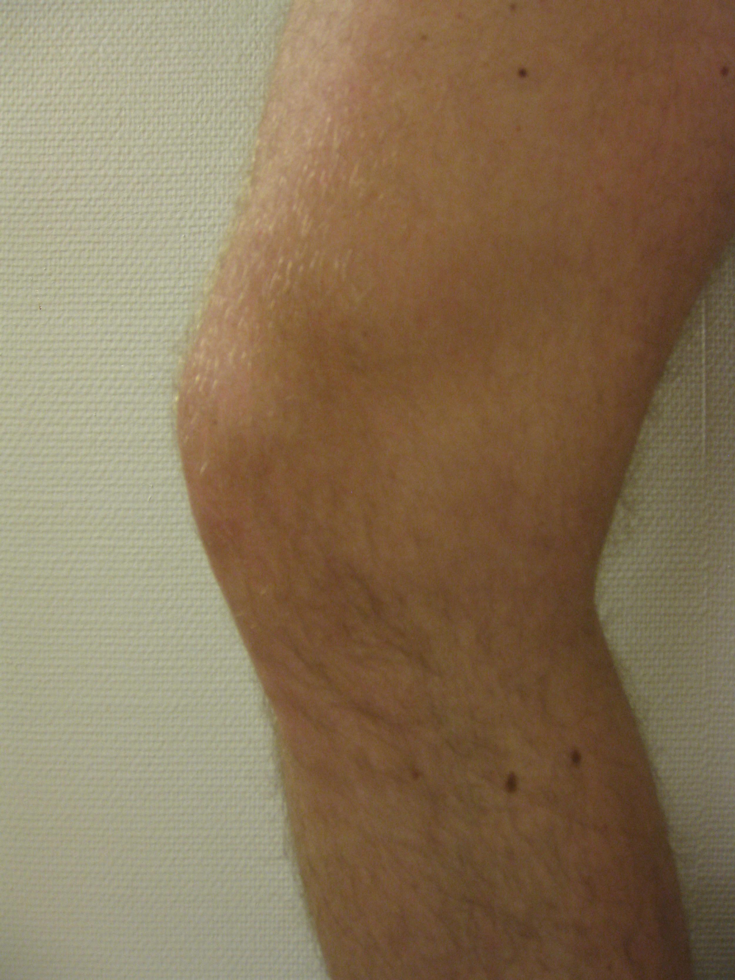 Overvekt er en risikofaktor for kne- og hofteartrose. www.forskerlivet.no