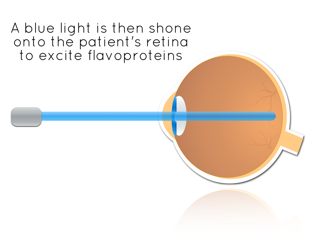eye diagram new 2.png