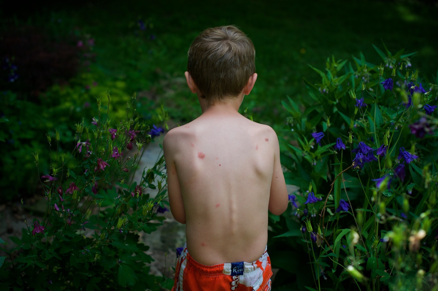 Bug Bites, Scrapes and Trampoline Burns