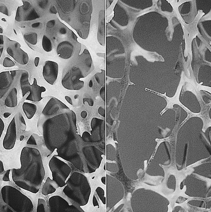 Microarchitecture ofhealthy bone (left) and in osteoporosis(right) via  Wikimedia Commons