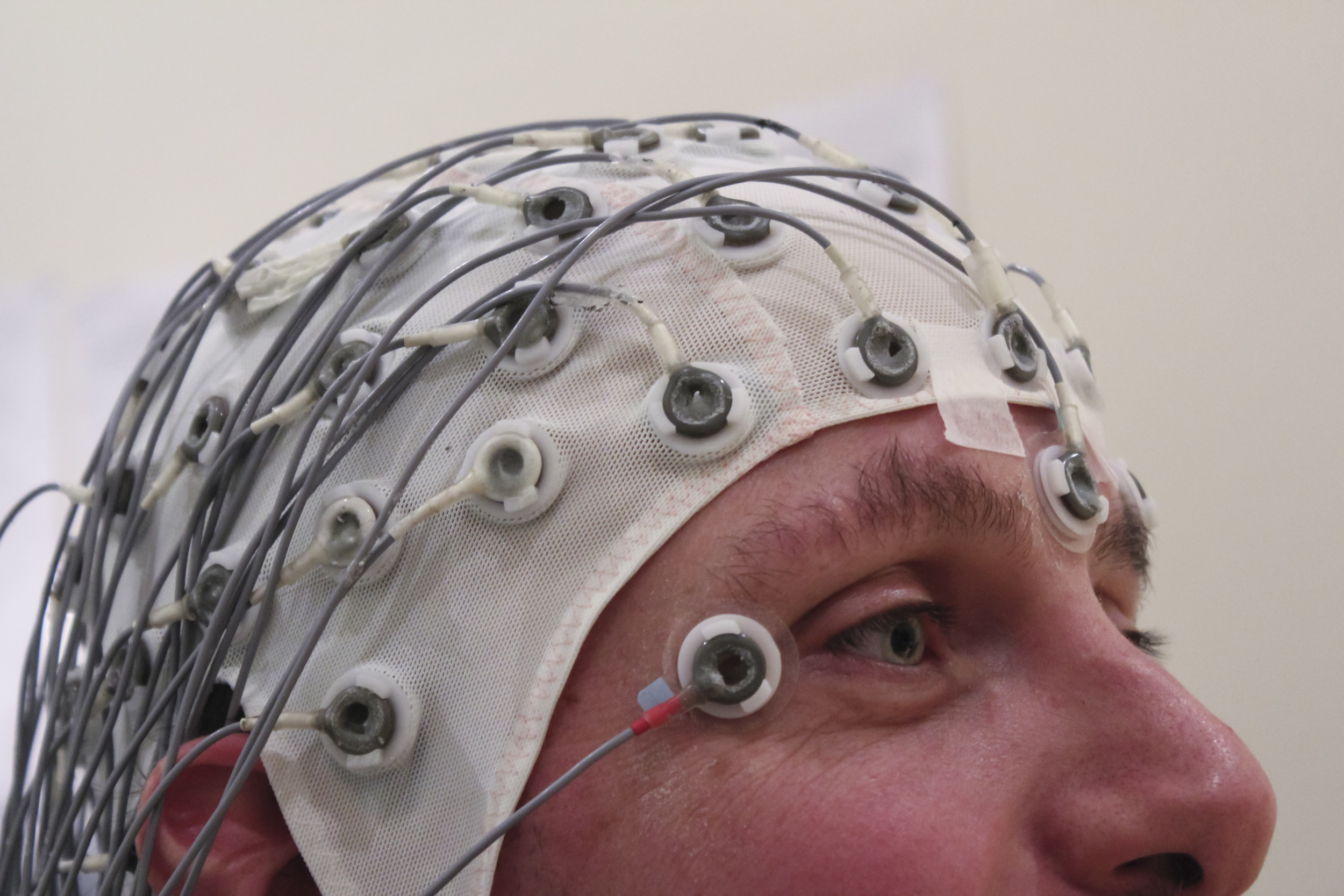 A patient being tested with EEG