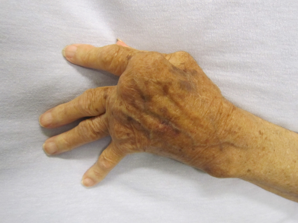 Nerve implants could treat auto-immune conditions, like rheumatoid arthritis