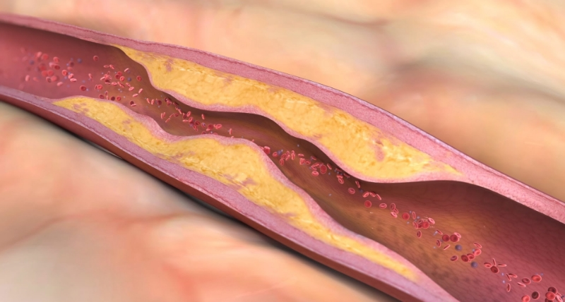 TMAO appears to be a potent promoter of atherosclerosis