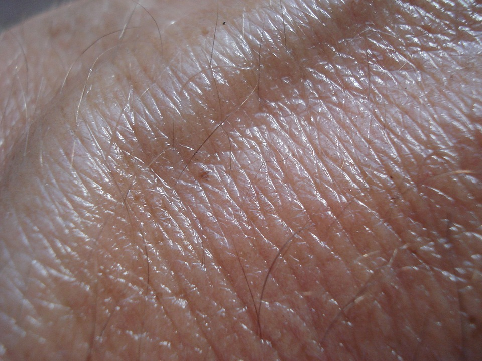 Skin cancer seemingly has a stronger genetic component