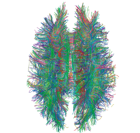 Unravelling the immense complexity of the brain is going to require serious computing power