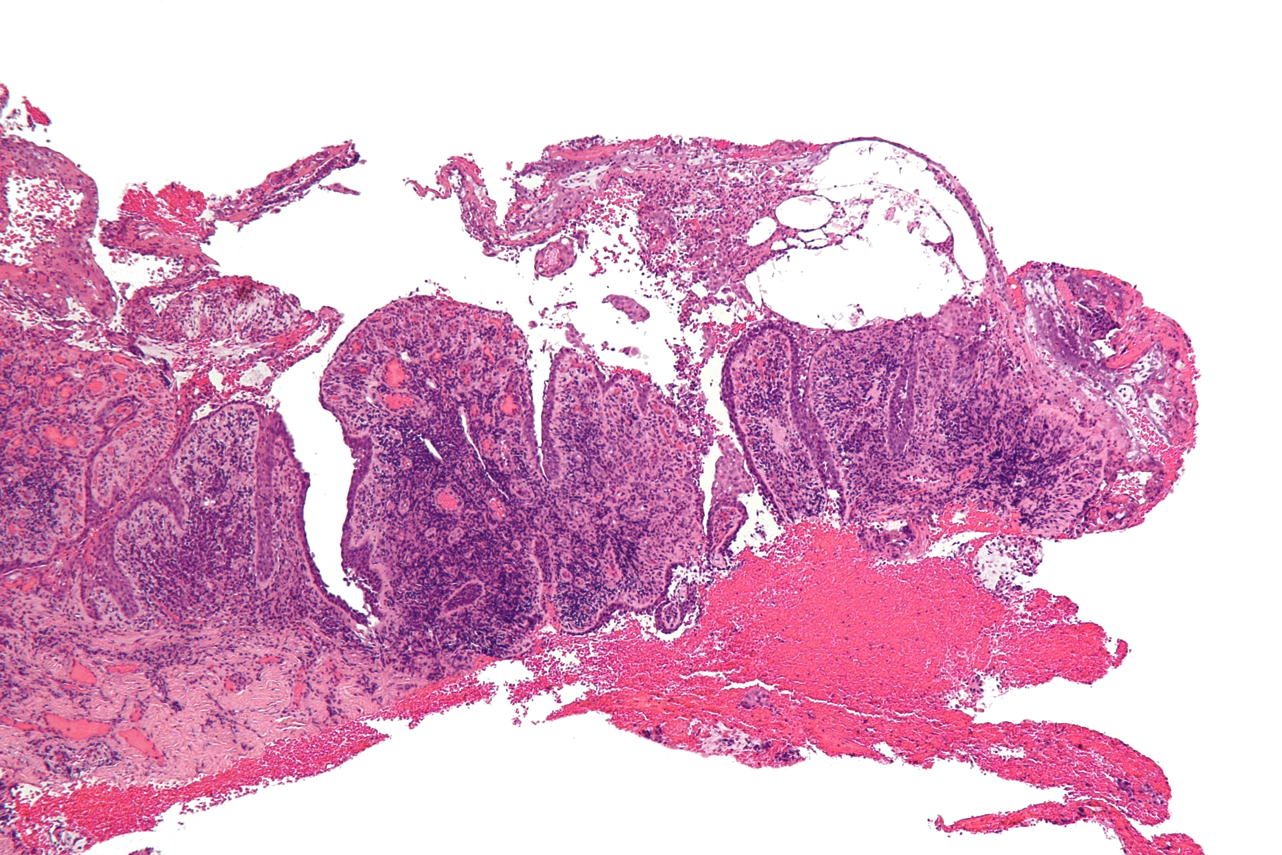 Magnification of a sample from a patient with pemphigus vulgaris