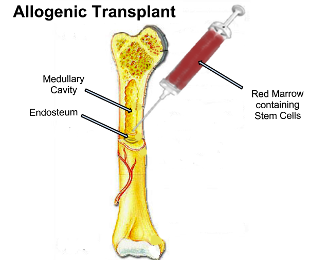 The conventional transplant strategy