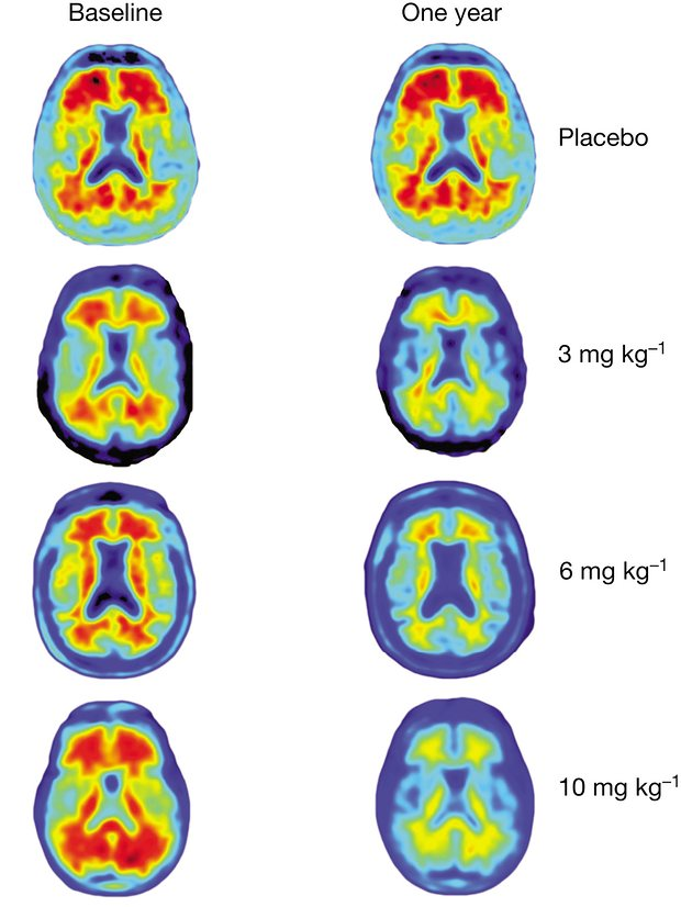 Brain scans at different antibody dosages.Amyloid beta is shown in red. Credit: Ayres, Michael/Sevigny et al/Nature