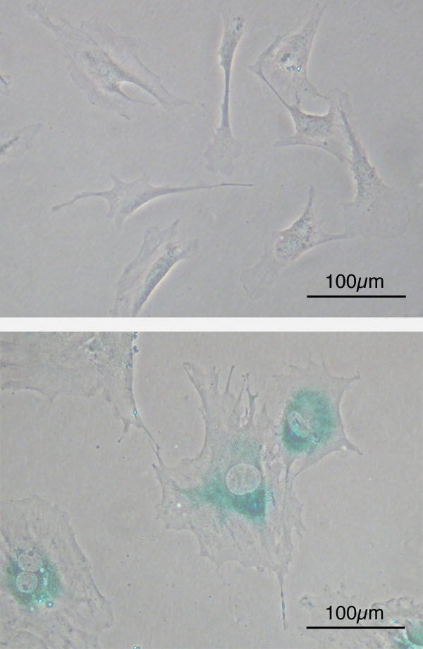Senescent cells stained for beta galactosidase (blue)