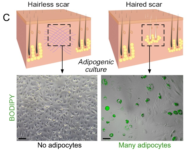 Comparison of wounds healing with and without hair follicles. Credit: Penn Medicine