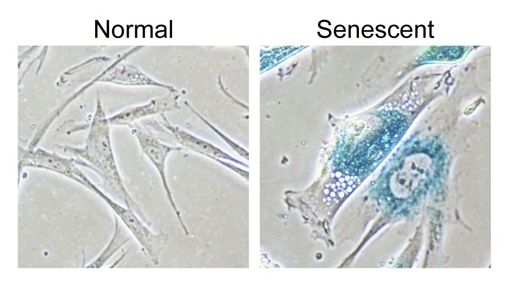 Senescent cells have a distinctive appearance and behaviour